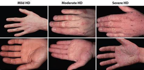 Brief Guidance On Different Types Of Eczematous Dermatitis