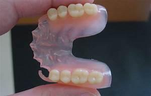 Valplast Prothese Abrechnung : r alisations esthetic dentaire esthetic dentaire ~ Themetempest.com Abrechnung