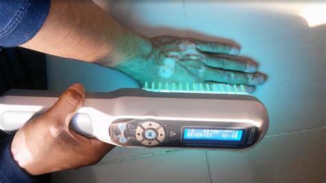 uv light therapy narrow band uvb light iron