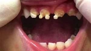 Dents Qui Se Déchaussent Photos : cet enfant se retrouve avec les dents ravag es par une substance bien connue ~ Medecine-chirurgie-esthetiques.com Avis de Voitures