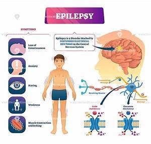 Epilepsy Biological Vector Illustration Infographic