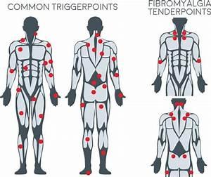 Back Trigger Points Chart