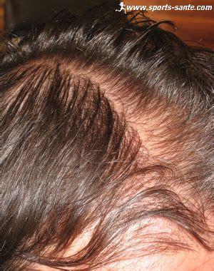 traitements des chutes de cheveux par voie orale ou locale