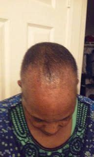 stop losing hair #HairLossNo!   Male pattern baldness ...