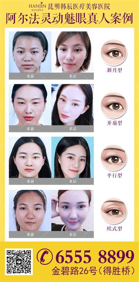 昆明韩辰阿尔法4.0美眼术 为你的美丽点睛-昆明吸脂抽脂哪家好_脂肪隆胸多少钱_昆明割双眼皮哪里好-昆明韩辰整形美容