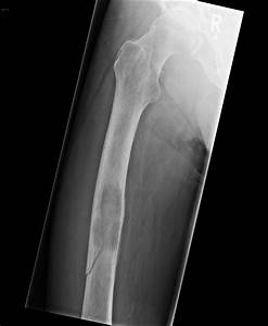 Pathological fracture of the femoral shaft due to lung ...