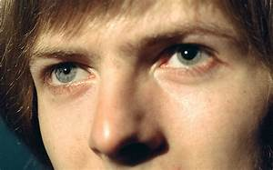 David Bowie's dog has different coloured eyes - Telegraph