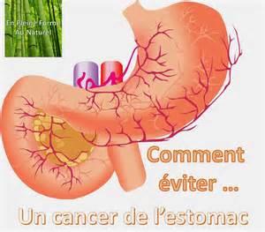 cancer oesophage