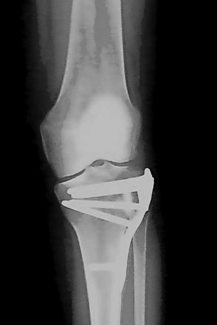 My Tibial Plateau Fracture (TPF) Rehab & Recovery: Bone