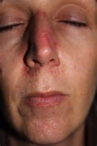 Skin Cancer as related to Fluorouracil - Pictures