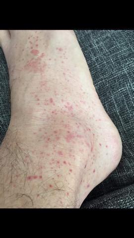 rote punkte  den beinen  ist das beine ausschlag
