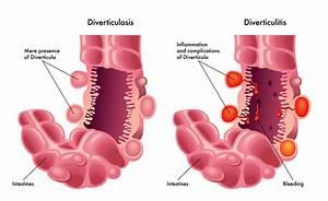 Klachten bij darmpoliepen