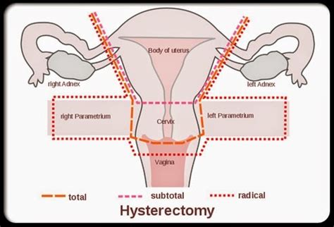 Sexual Function after Hysterectomy- Hormones Matter