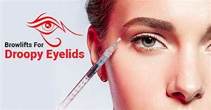 BOTOX® Browlifts For Droopy Eyelids | Dr. Asif Pirani