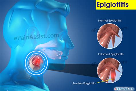 Epiglottitis Symptoms. Nvld Signs. Job Site Signs. Granuloma Annulare Signs. Rhombus Signs. Gangsta Signs Of Stroke. Stroke Infographic Signs. Famous Person Signs Of Stroke. Road Colour Light Signs