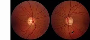 Fundus Photography Ou  Photograph Od Is Normal But Os Shows Subtle
