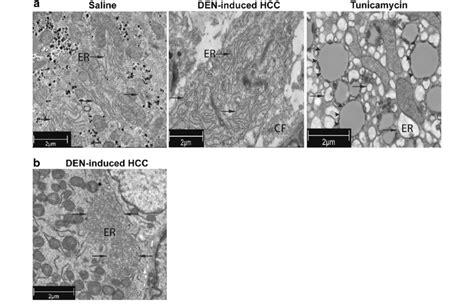 transmission electron microscopy  saline