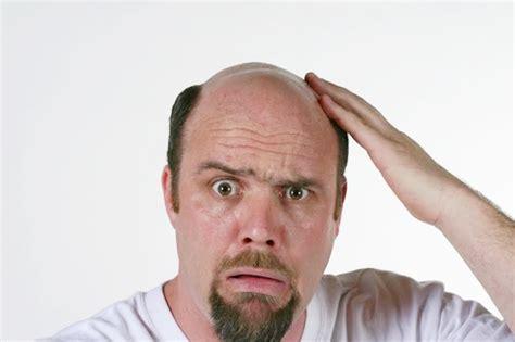 Tyzara Shampoo Soya 1 Langkah Mudah Selesaikan Masalah Rambut Gugur Kelemumur Botak Foto Gaya Model Rambut Pendek Wanita Potongan Panjang Jepang Wajah Bulat Leher Untuk Dan Kening Lebar Berponi 2018 Muka Verrel Bramasta Tatanan Kebaya