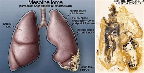 Mesothelioma Cancer - your doctor guide