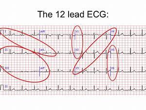 12 Lead Ecg Interpretation Lesson And Practice Quiz 311