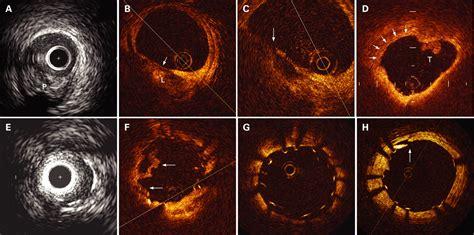 cardiac optical coherence tomography heart