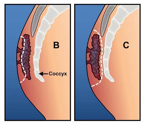 pilonidal cyst pilonidal disease ascrs