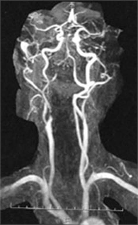 aphp siege carotides chirurgie vasculaire hopital henri mondor