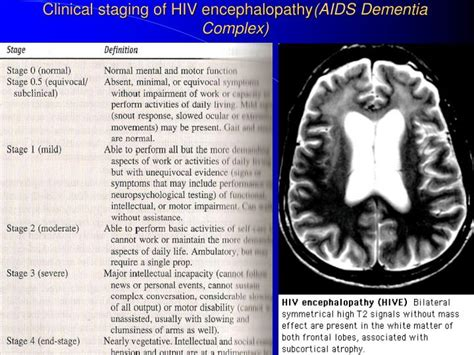 hiv neurology powerpoint  id