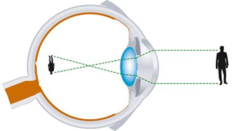 mutuelle generation operation myopie tout savoir sur la chirurgie des yeux centre m 233 dico 356   myopie 0