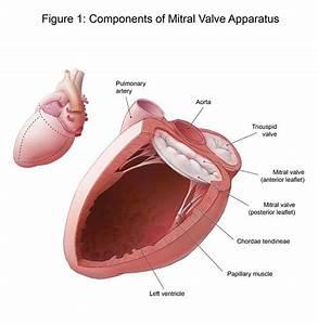 Mitral Valve Repair Surgery