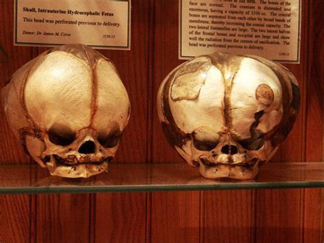 mutter museum   history  medicine   page