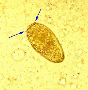 Trematodes - Medical Laboratory Technician 240 with ...