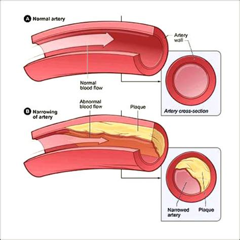 plaque cuisine how to lower ldl cholesterol by healthy foods