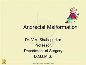 3anorectal Malformation
