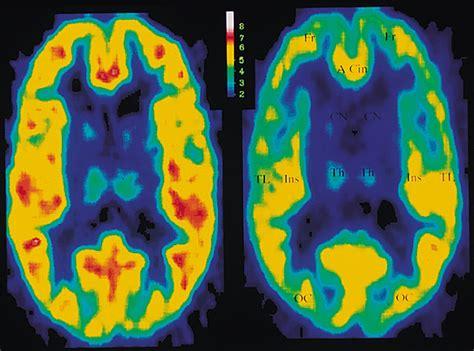 decreased brain gabaa benzodiazepine receptor binding