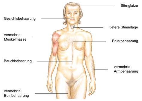 crh ueberschuss morbus cushing cushing syndrom