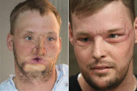 face transplant recipient ecstatic
