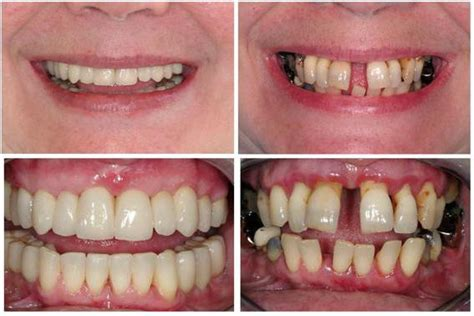 Schreckliche Zähne in Krankheiten