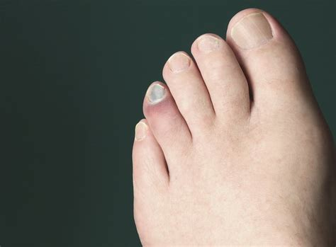 toe heal broken help ouch stubbed livestrong getty