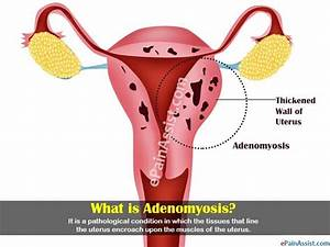 What Is Adenomyosis