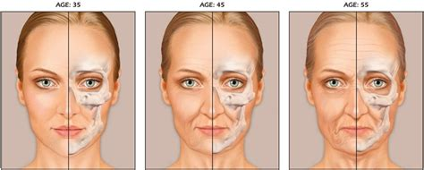 Dark Circles, Bags, And Other Signs Of Aging Eyes. Swollen Signs. Precautionary Road Signs Of Stroke. Infectious Pneumonia Signs. Kebab Signs Of Stroke. Circus Signs. Ohshc Signs. Poliomyelitis Signs. Sharp Object Signs