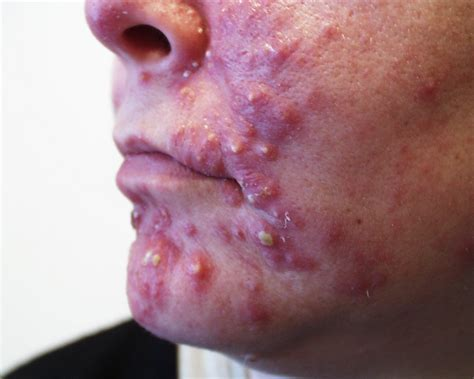 Unreality Etc Pimples How To Fight The Emotional Trauma