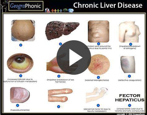 quiz game chronic liver disease chronic liver