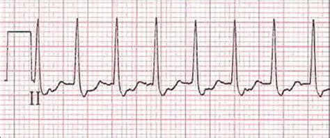 common types  supraventricular tachycardia diagnosis