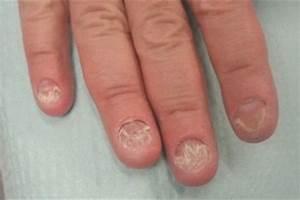 Самое эффективное средство от грибка ногтей на руках и ногах