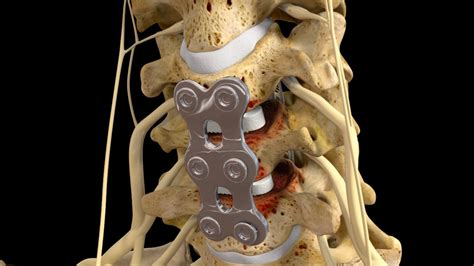 Spinal Injury Award Affirmed on Appeal