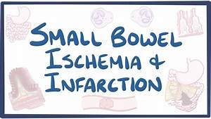 Small Bowel Ischemia  U0026 Infarction