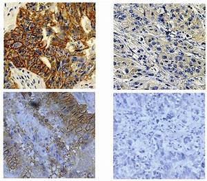 Immunohistochemical Staining Of Her2 And Mrp1 In