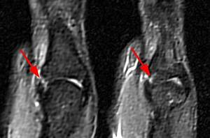 Ulnar Collateral Ligament Tears of the Thumb - Radsource