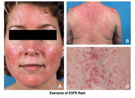 Chemo Rash & EGFR Rash Treatment